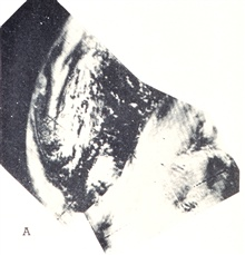 Two overlapping TIROS I images showing extratropical cyclone centered about400 miles west of Ireland.Monthly Weather Review, March 1961, p. 80.